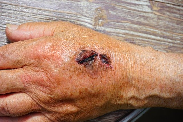 What are the different categories of open wounds and their treatment